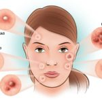 Acne: What It Is And How To Fight It